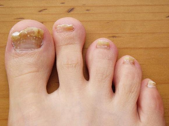 Аллергия на гель для наращивания ногтей как лечить